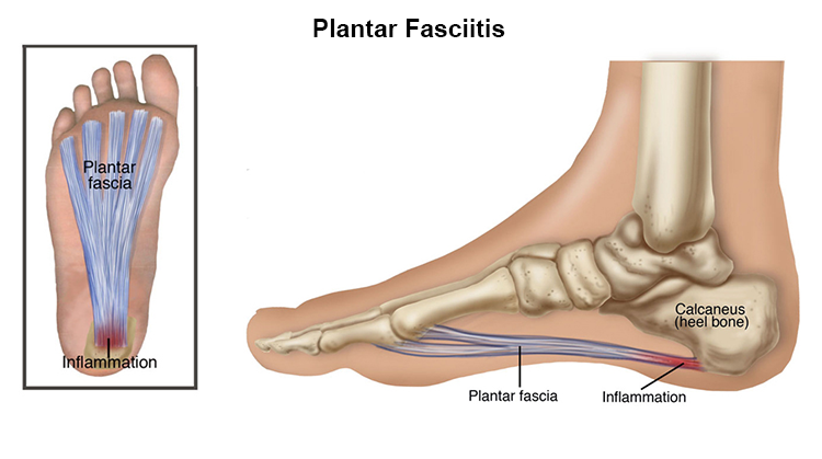 Plantar Fasciitis treatment in Dee Why